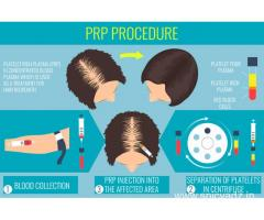 Best PRP Treatment Clinic in Punjab at Cheap & Affordable Cost | Delhi Hair Clinic