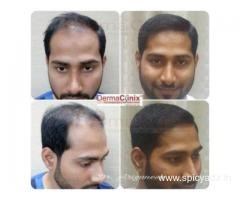 Best Hair Transplant Clinic in Chennai