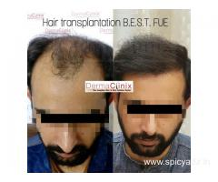 Largest Hair Transplantation Center in Asia