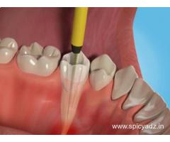 Rejuvenate Your Smile with Root Canal Treatment in Delhi