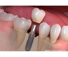 Smile More Often with Dental Implants in Delhi at Affordable Costs