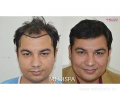 Hair Transplant Cost in India  | 8527220878
