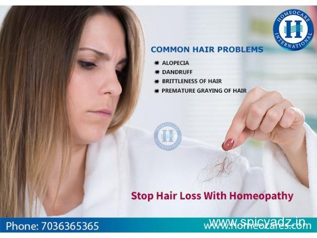 Best Homeopathy Treatment For Hair Loss Problem In Malleswaram - 1