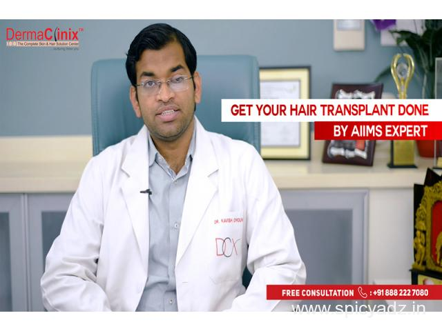 Are There Any Side Effects of Hair Transplant?