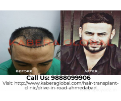 Reinvent Looks by Best Hair Transplant Clinic in Ahmedabad