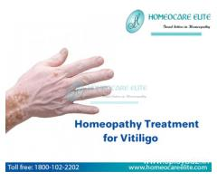Homeopathy treatment for Vitiligo in Masab Tank