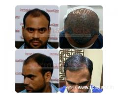Hair Transplant – A New Entry in the Domain of Cosmetic Surgery