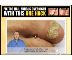 Foot Surgery Home Recovery Tips: 20 Things You Can Do for an Easier Recovery