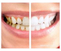TEETH CLEANING & WHITENING TREATMENT SERVICES