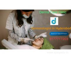 Dermatologist in Hyderabad | Acne Treatment in Himayat Nagar