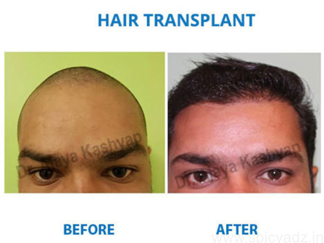 Doctor for Hair Transplant Near Me - Experienced Hair Transplant Experts - 1