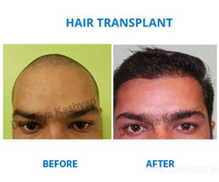 Doctor for Hair Transplant Near Me - Experienced Hair Transplant Experts‎