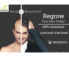 Hair Transplant in Delhi @ 34999 | Easy EMI Options Available